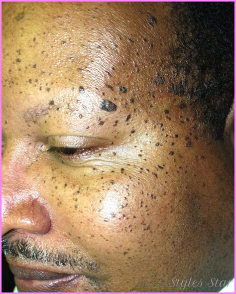 Chocolate Spots by What Can I Do About The Brown Spots On My