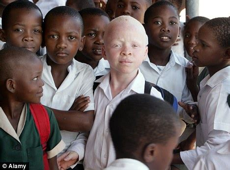 pecado premio novela polic b075lgscjq albino child who disappeared on way home from was kidnapped by witch doctors for tribal