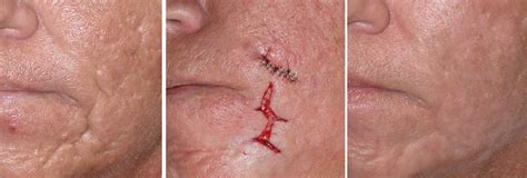 medical pictures info acne scar removal