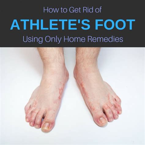 killing athletes foot in shoes 13 home remedies for athlete s foot cure get rid of it