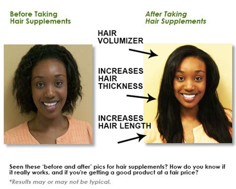 vitamin e supplement for hair before after hair supplements hair