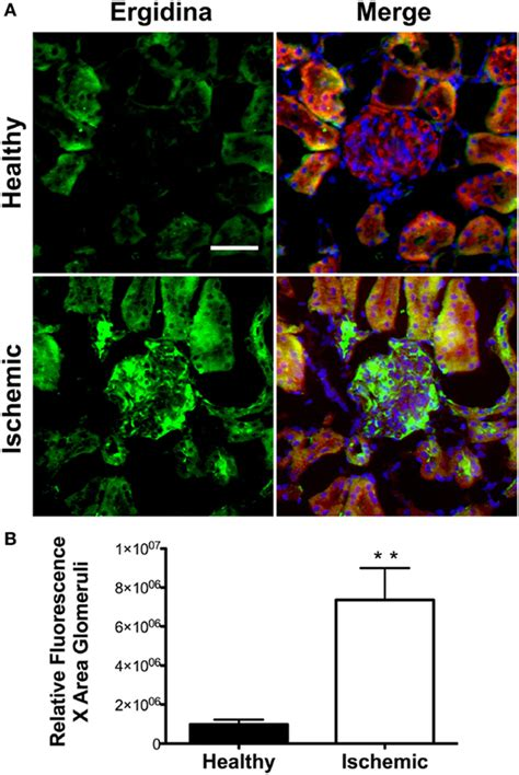 frontiers antibody targeting of steady frontiers targeted delivery of neutralizing anti c5