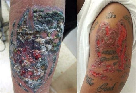 tattoo ink urine dangers of tattoos and body piercing your artist will