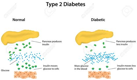 how can i reduce type 2 5ar type 2 diabetes archives infertility pregnancy
