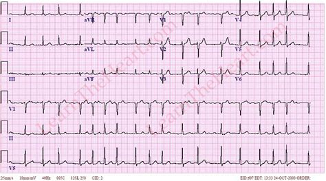 atrial fibrillation with rvr 1 learntheheart