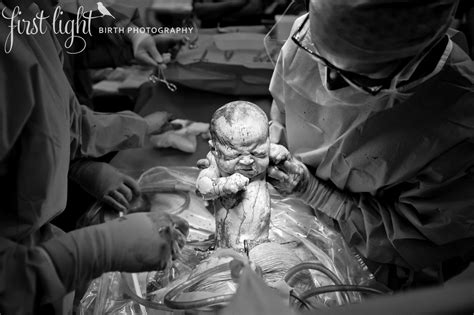 first cesarean section photographer documents c section to show there is no