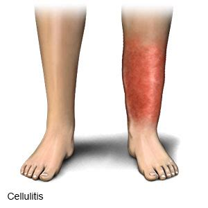 best antibiotics for cellulitis leg cellulitis antibiotics treatment and home remedies