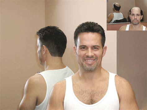 hairline restoration for men pop wigs usa makes custom made wigs easy