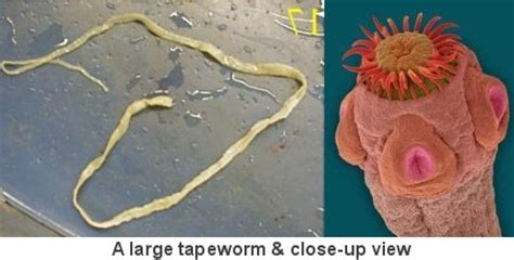 parasites and zoonoses