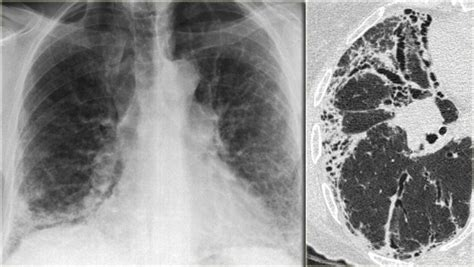 uip pattern the radiology assistant lung hrct common diseases