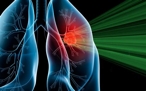 Proton Cancer by Intensity Modulated Proton Therapy Shows Promise For Lung