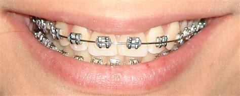 imagenes de sonrisas blancas ortodoncia