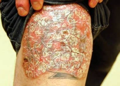 psoriasis tattoo chronic plaque psoriasis cancer network