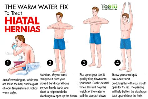 how to fix stomach pain home remedies for hiatal hernias top 10 home remedies