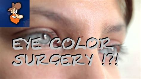 permanent eye color surgery eye surgery with permanent eye color change lets see