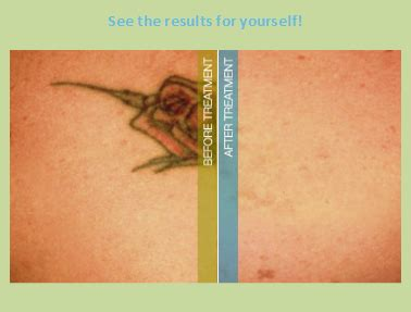 bristol tattoo removal 18 erased removal erased laser