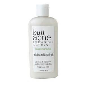 pimples on buttocks home remedies home remedies for acne