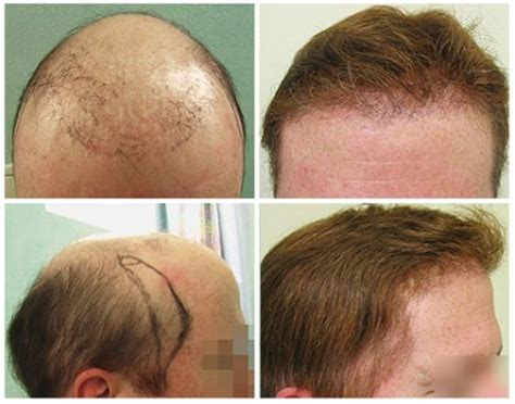 transplant hair from chest to head 301 moved permanently