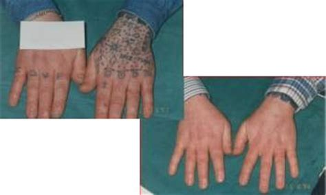 tattoo removal croydon removal gallery laserase croydon