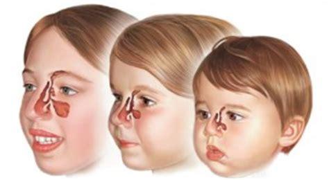 les sinusites de l enfant orl nc