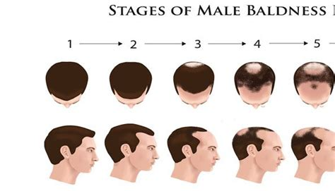 male pattern baldness types related keywords suggestions for male baldness