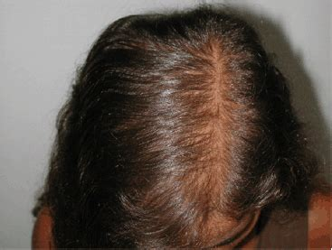 hair follicles in older women narrowing androgenetic alopecia