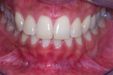 teeth whitening shade    blue court dental