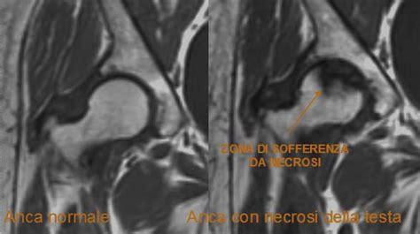 necrosi testa femore sintomi necrosi della testa femore