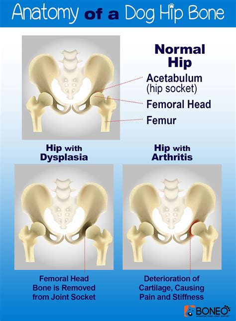 image gallery hip causes