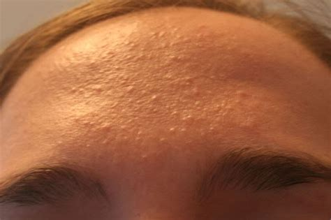 skin colored bumps on bv symptoms in