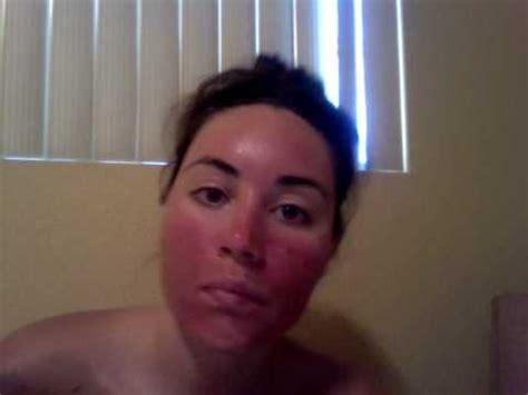 acne treatment levulan day 2