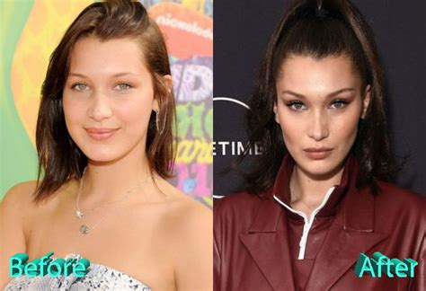bella hadid before and after plastic surgery plastic bella hadid plastic surgery the catwalk beauty queen