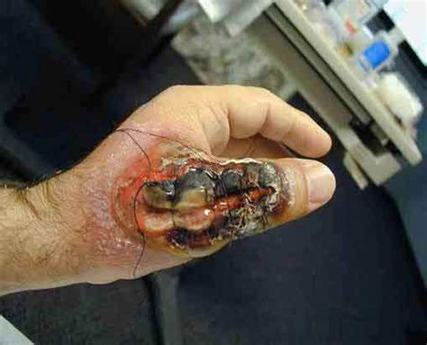 Spider Bite Detox by Most Dangerous And Venomous Spiders Of The World