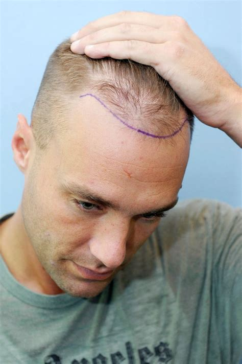 has sting had a hair transplant calum best has revealed the results of his third hair
