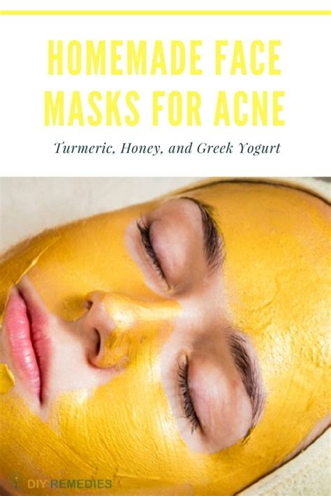 mask for acne diy 6 best diy masks for acne