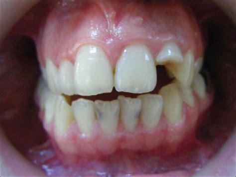 Biaya Pemutihan Gigi Jogja tips info perawatan gigi gigi keropos klinik gigi dental yogyakarta