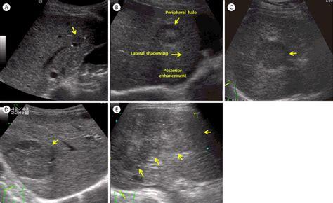mosaic pattern hcc ultrasonographic findings of hepatocellular carcinoma hcc