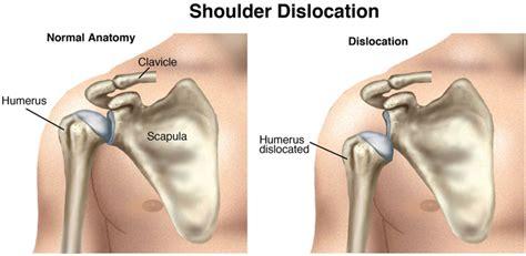 dislocated shoulder shoulder dislocation instability treatment symptoms