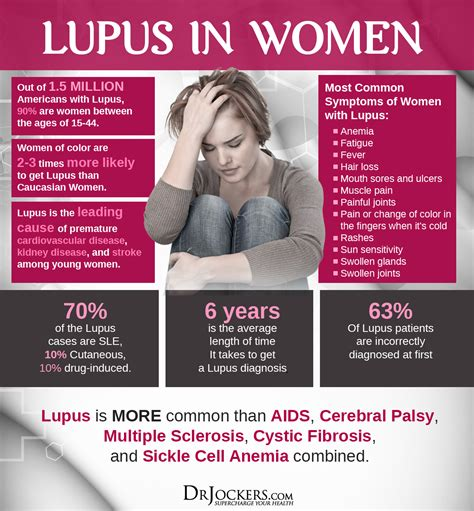 Sle Letter Of Someone Living With You 19 Ways To Heal Systemic Lupus Naturally Drjockers
