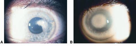 pattern dystrophy aao pediatric corneal opacities american academy of