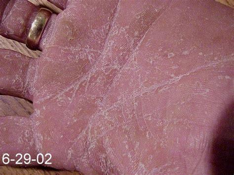 skin fungus emu for skin nail fungus topical antifungal for sale