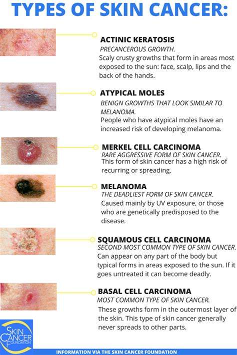 types of cancer types of cancer treatment images