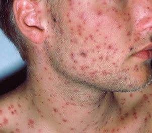 mal di testa hiv morbillo trasmissione diretta e indiretta sintomi