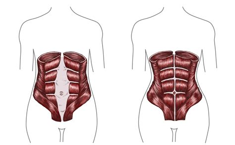 pulling sensation after c section fixing diastasis recti post pregnancy belly in 10 minutes