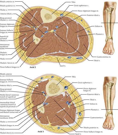 cross section of leg leg and forearm fasciotomy basicmedical key
