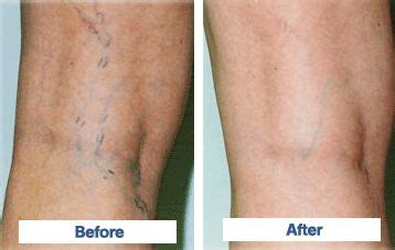 8 Symptoms Of Varicose Veins by Vein Sclerotherapy Before And After Contact Carolina