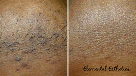 laser hair removal for african americans best medspa treatments for african american skin