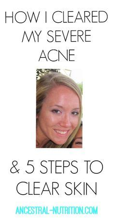 Tips Acne Skin Clear Methods by Skin Care And Health Tips 3 Simple Methods To Safely