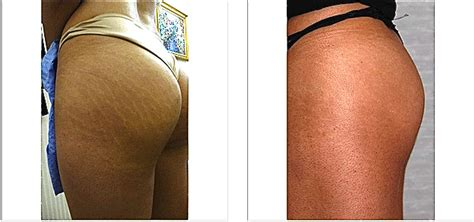 Miller Has Stretch Marks And Cellulite by New York S Carboxytherapy Center Dedicated To