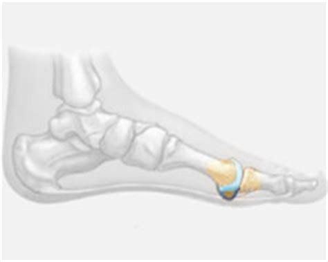 Planter Plate by Plantar Plate Injury Treatment Options For Plantar Plate Tear
